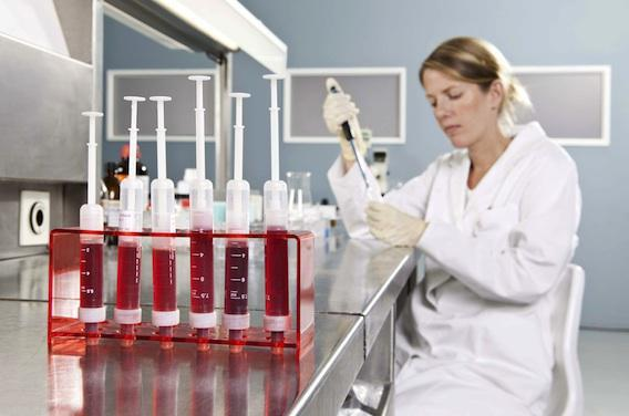 Leucémie aiguë myéloïde : la midostaurine améliore la survie des formes mutées FLT3