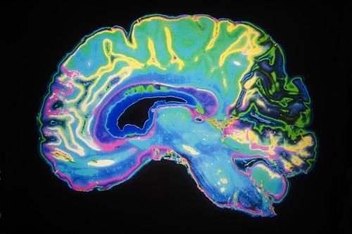 Cortex : de profondes modifications à l'adolescence
