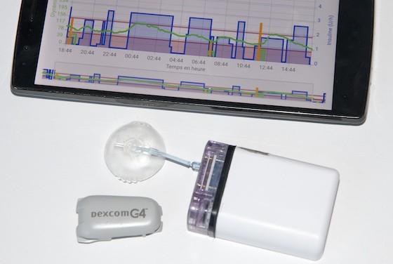 Diabète : le 1er pancréas artificiel français en expérimentation