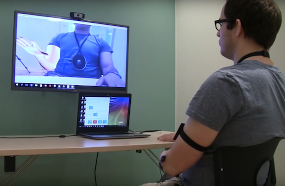 Douleurs fantômes : les douleurs après amputation soulagées par la réalité virtuelle