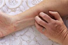 Eczéma atopique : une nouvelle biothérapie et un véritable tournant dans la maladie