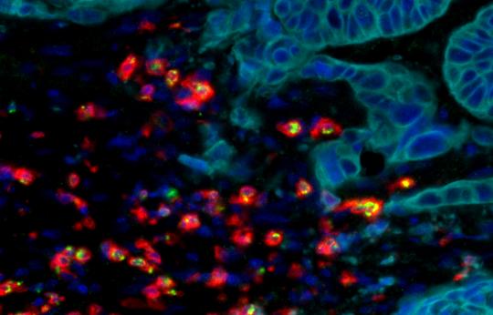 Métastases : prépondérance du microenvironnement tumoral et de l'immunité