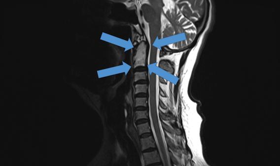 Chordome cervical : des vertèbres imprimées en 3D sauvent un australien