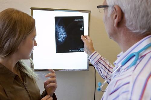 Cancer du sein : chute de la mortalité en France