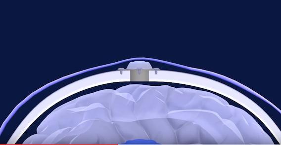 Glioblastome : un implant pour améliorer l'efficacité de la chimiothérapie