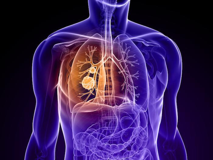 Cancer du poumon métastasé : une double immunothérapie efficace