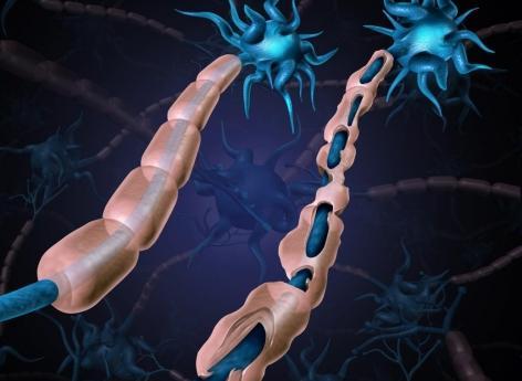 Sclérose en plaques: une nouvelle cible contre l'atteinte de la myéline