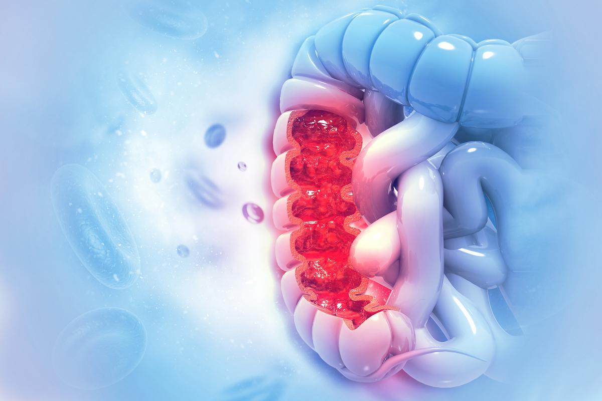 Cancer du côlon : une maladie très différente chez les jeunes