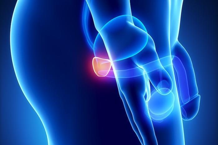 Cancer de la prostate métastasé : intérêt potentiel des associations d'immunothérapies