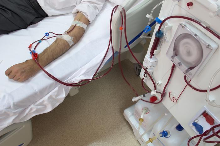 Insuffisance rénale : alerte sanitaire sur un produit de dialyse