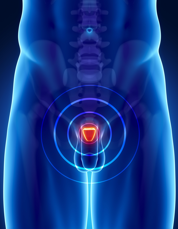 Cancer de la prostate : l'IRM plus efficace que la biopsie dans le diagnostic