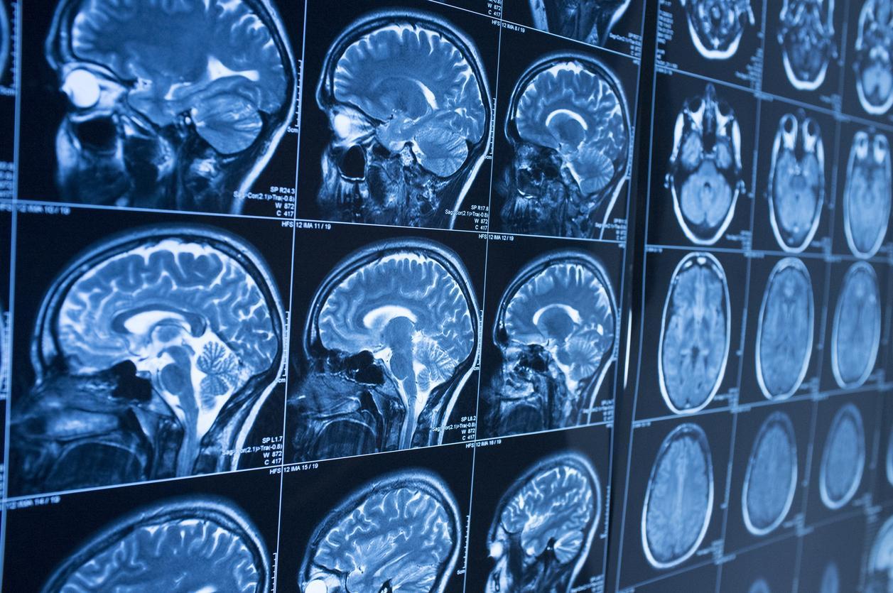 Parkinson: un nouvel espoir fondé sur l'immunothérapie