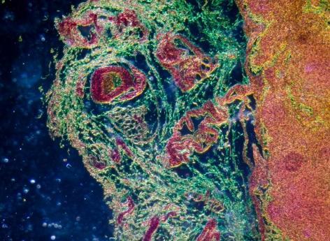 Lymphome diffus à grandes cellulesB : intérêt potentiel du traitement combiné ciblé sans chimiothérapie
