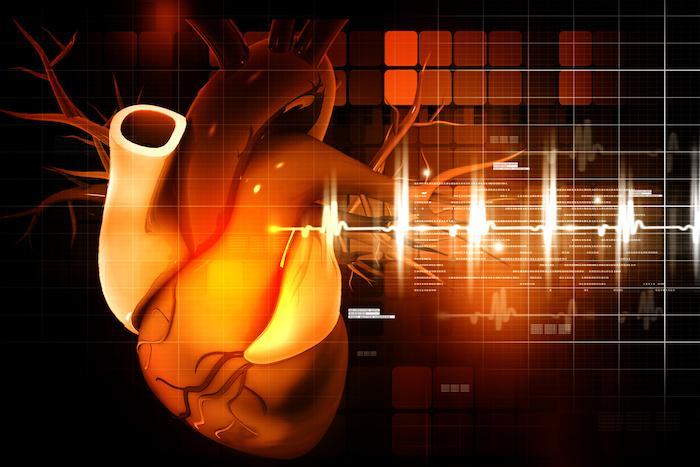 Risque cardiovasculaire : l'inflammation est un facteur de risque chez certains malades