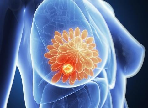 Cancer du sein triple négatif : un nouveau médicament intelligent donne de l'espoir
