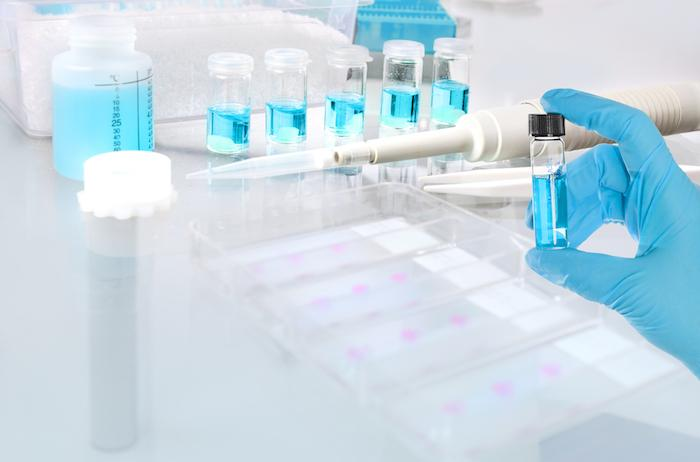 ASCO 2018 : qu'est-ce que la biopsie liquide ?