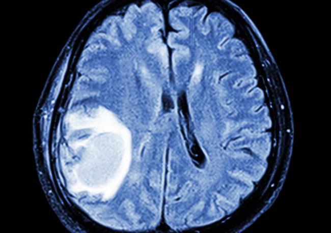 Mélanome métastasé : l'ordre de la séquence radiothérapie-immunothérapie est important