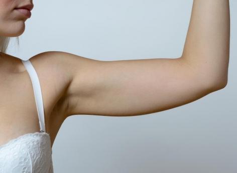 Cancer du sein : le lymphœdème touche près de 20% des malades