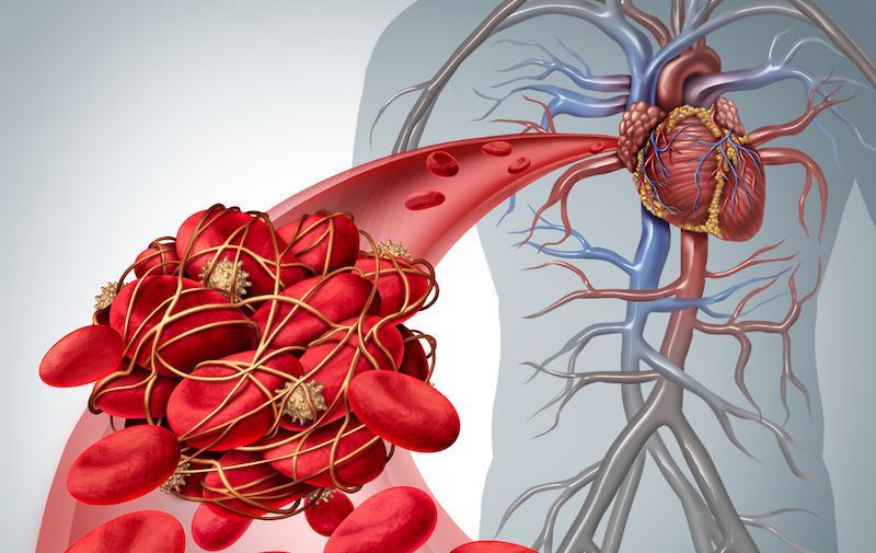 Cancer et thromboses : intérêt des anticoagulants oraux directs en cas de risque élevé