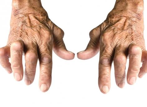 Arthrose : une mortalité cardiovasculaire plus élevée
