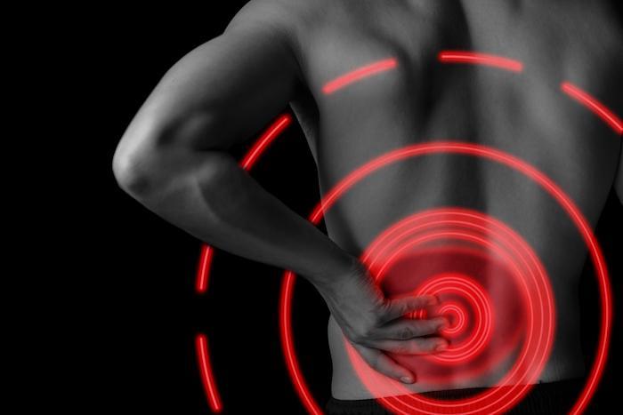 Sciatique chronique : l'inflammation siège à différents niveaux selon les formes