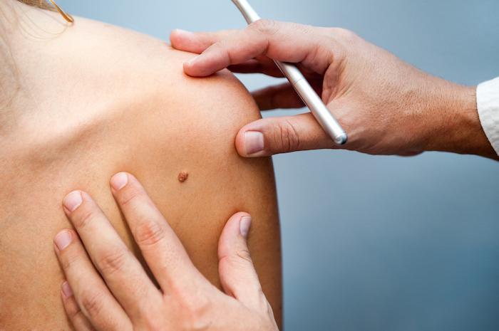 Mélanome au stade avancé : l'immunothérapie néoadjuvante change la donne