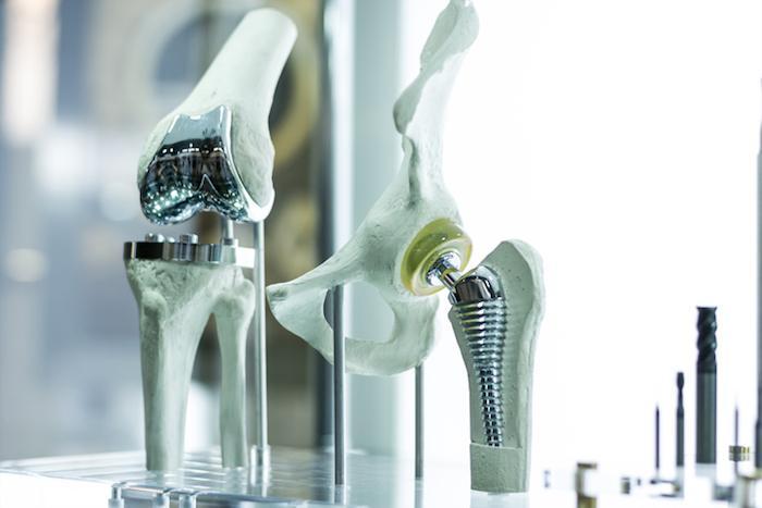 Arthrose : plus de complications lors de prothèse de hanche avant 65 ans
