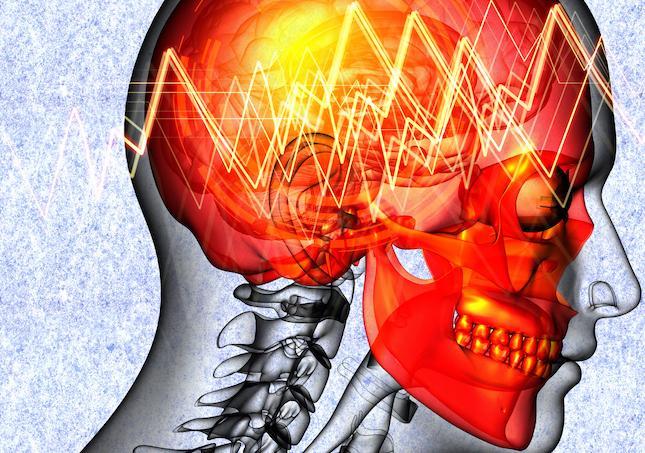 Lombalgie chronique: la stimulation électrique d'une région du cerveau soulage les douleurs