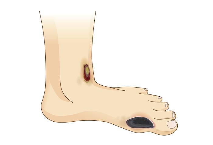 Insuffisance veineuse compliquée d'un ulcère : le retrait de la veine saphène superficielle améliore la cicatrisation