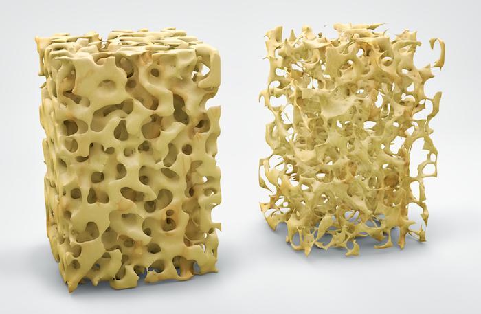 Prolia : un traitement anti-ostéoporotique mis en cause de façon partiale