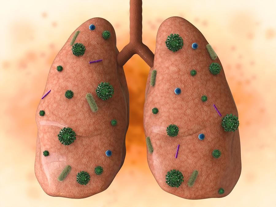 BPCO : des stratégies spécifiques contre les Haemophilus influenzae pathogènes