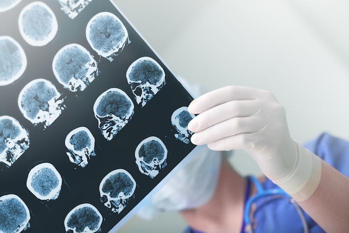 IRM : une technique quantitative pour une meilleure prédiction de la sortie du coma