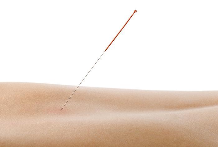 Acupuncture : vers une prescription médicale dans la douleur chronique ?