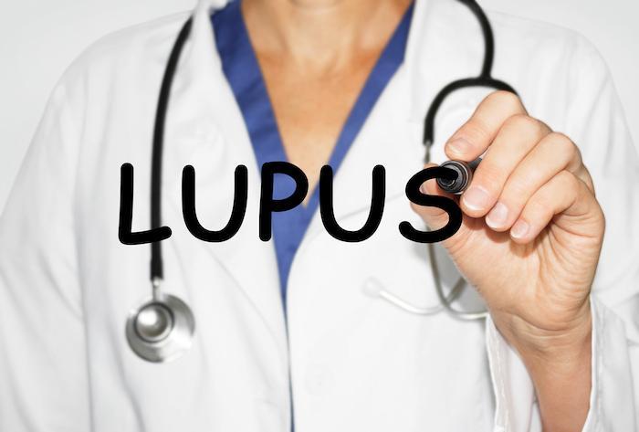 Lupus : des anomalies précoces sur la lignée lymphocytaire B