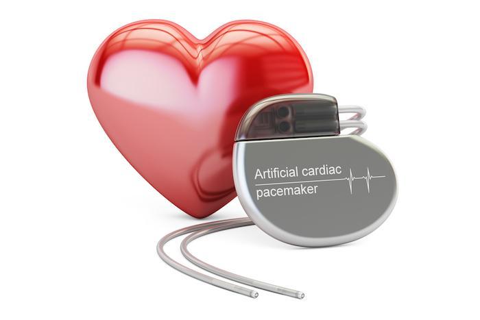 Insuffisance cardiaque: des microstimulateurs implantables sans fil pour sauver le coeur d'un octogénaire. VIDEO