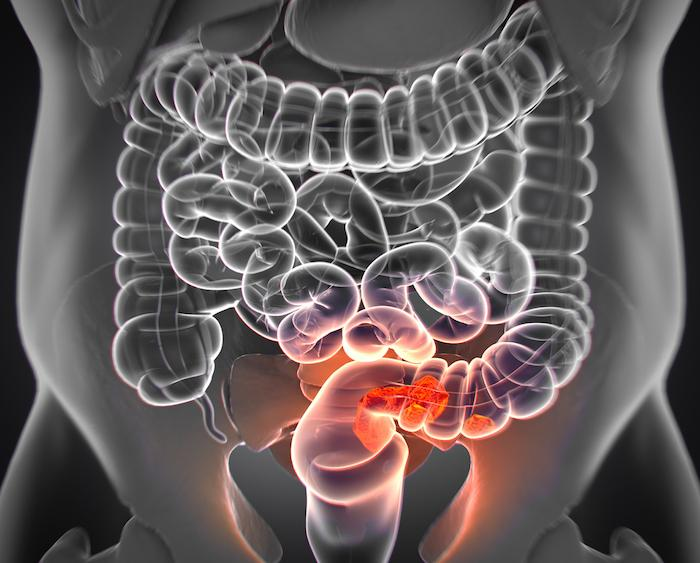 Cancer colorectal : 3 mois de traitement adjuvant suffisent