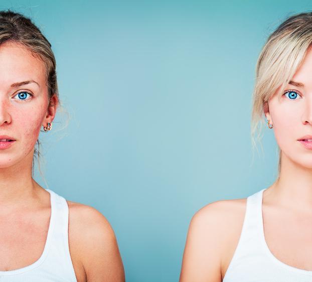 Stress, dépression : l'acné affecte la qualité de vie
