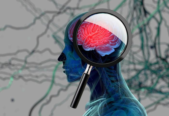 Dépression :  mal contrôlée, l'inflammation cérébrale est associée au suicide