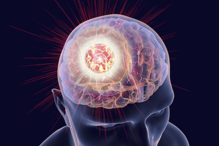 Mélanome : nivolumab et ipilimumab, l'association de référence dans les métastases cérébrales