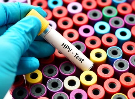 Cancer du col de l'utérus: un autotest pour améliorer le dépistage