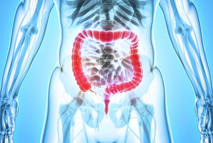 Cancer du côlon au stade III : les boissons light augmentent les chances de survie