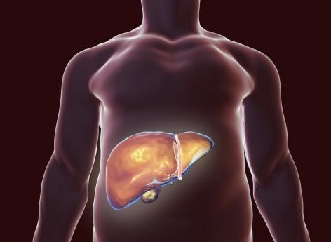 Hépatite C : les antiviraux réduisent la mortalité et le cancer