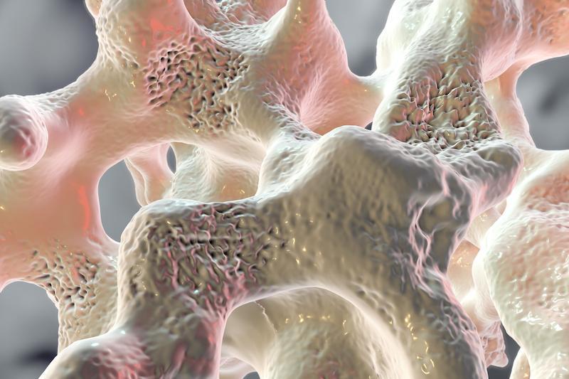 Ostéoporose : 2 gènes responsables avec une nouvelle techniques