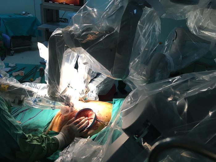 Cancers gynécologiques : apport de la chirurgie robotique