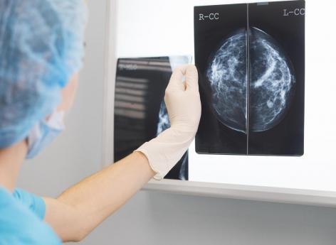 Cancer du sein: le test TAILORx peut être amélioré par les critères cliniques