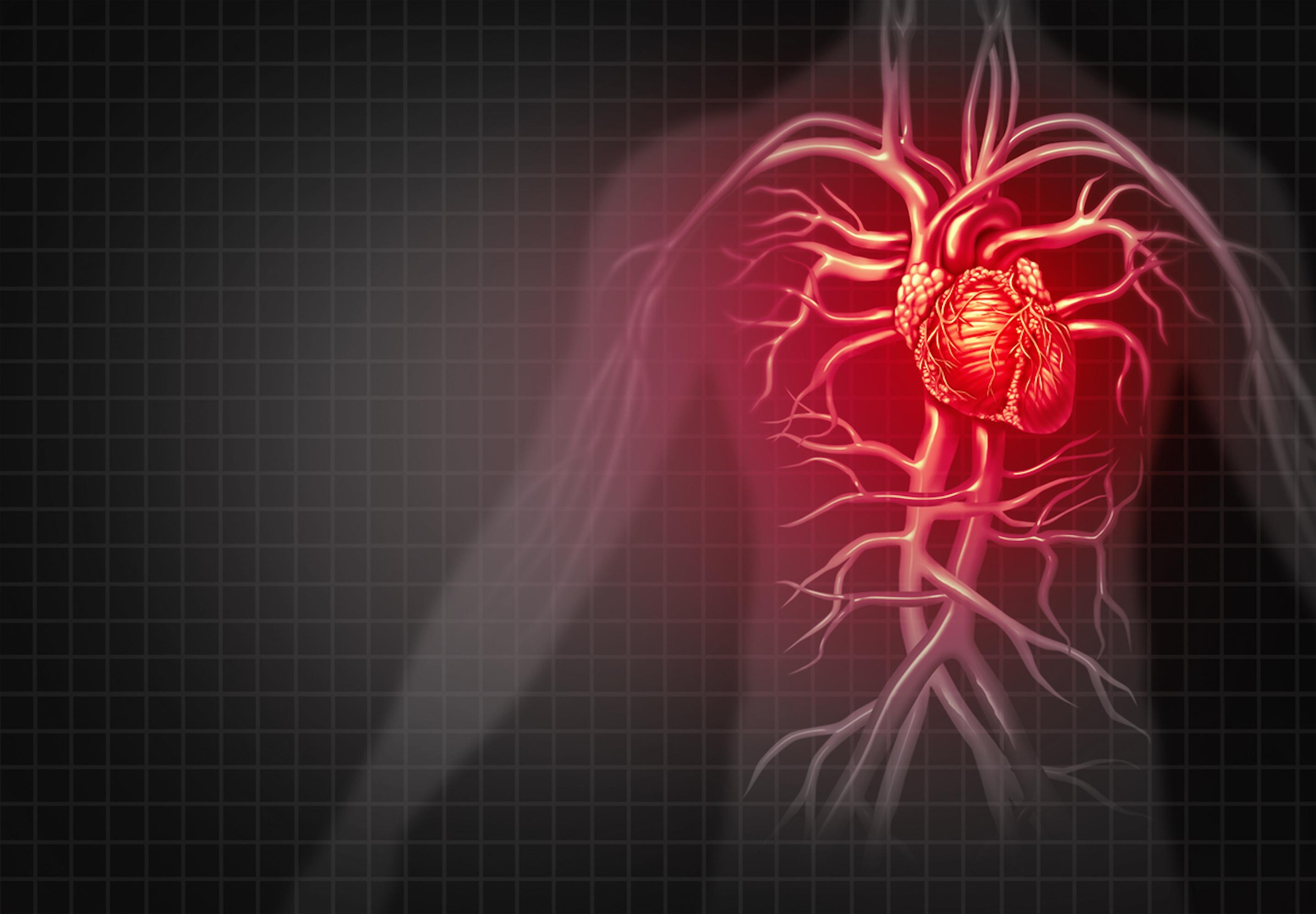 Risque cardiovasculaire : les MICI multiplient par 9 le risque de crise cardiaque