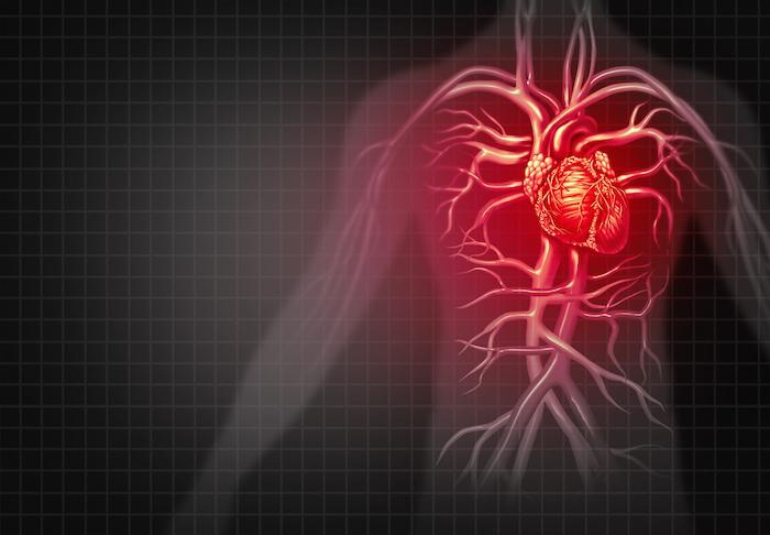 Insuffisance cardiaque : l'IC n'est pas associée à un risque accru de cancer