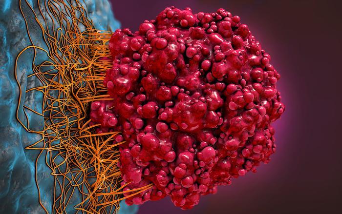 Mélanome avancé : l'immunothérapie néo-adjuvante peut être à la fois efficace et mieux tolérée