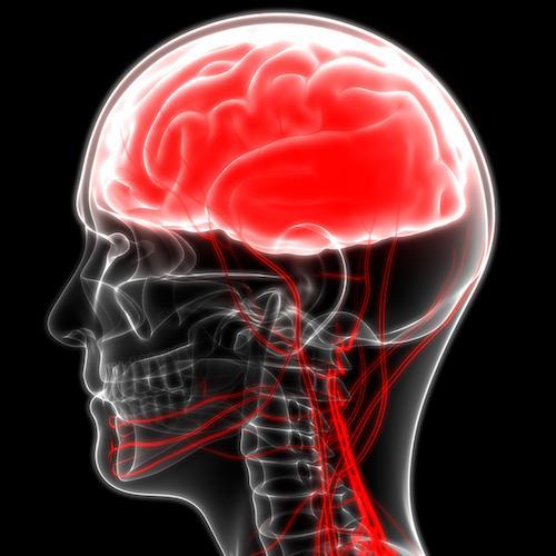 AVC : stimuler le nerf vague améliore la récupération des compétences motrices