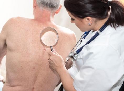Kératose actinique : une immunothérapie réduirait de 75% les risques de carcinome épidermoïde